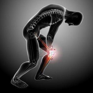 13757792-de-rayos-x-anatomia-del-dolor-de-rodilla-masculina